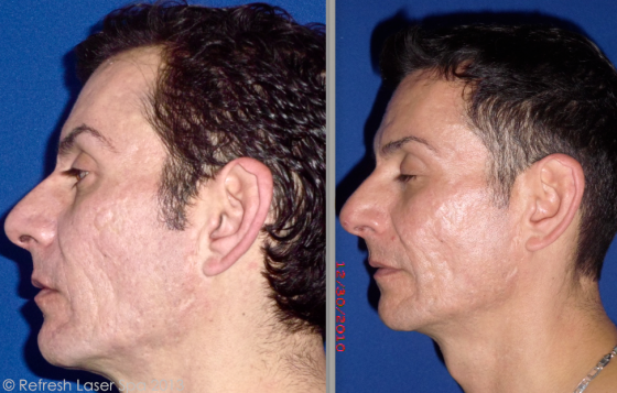 co2 acne scars before and after